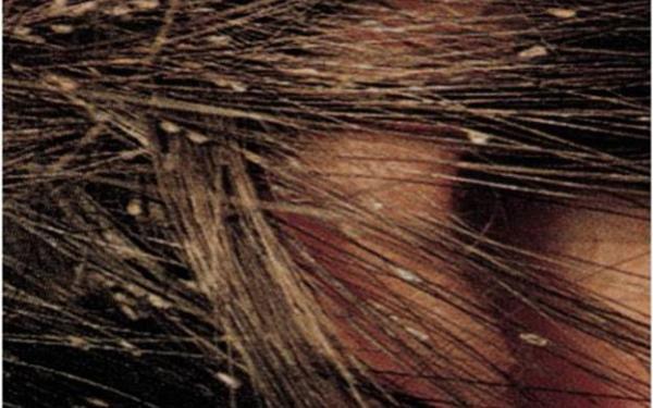 La máscara para los cabellos el aceite de oliva con el pimiento