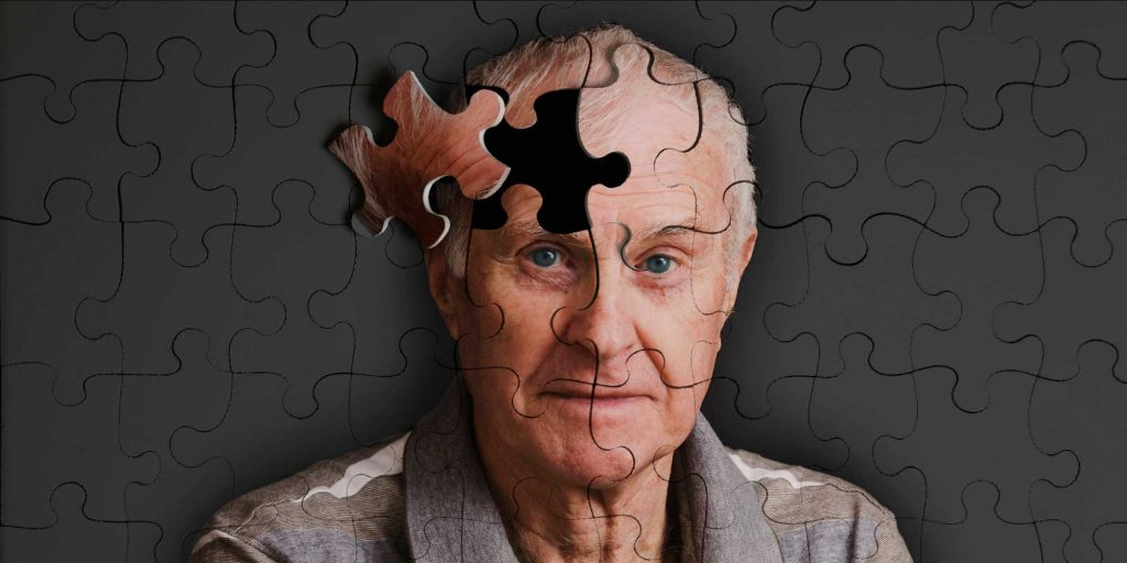 ¿Es posible frenar el Alzheimer?