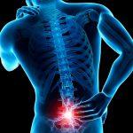 Hombres, los más afectados por dolor en espalda baja