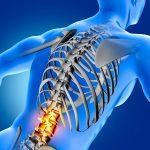 Prediagnóstico de osteoporosis